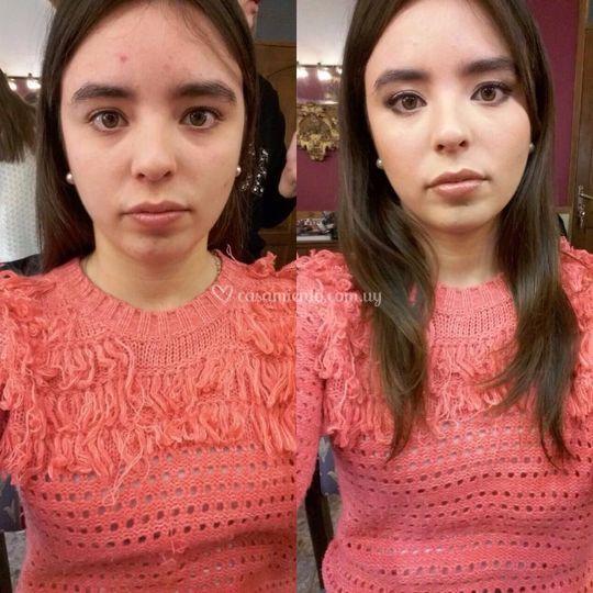 Correcciones de piel
